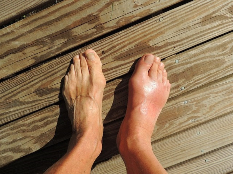 How to Get Rid of a Bunion | Bunion Pain Treatment