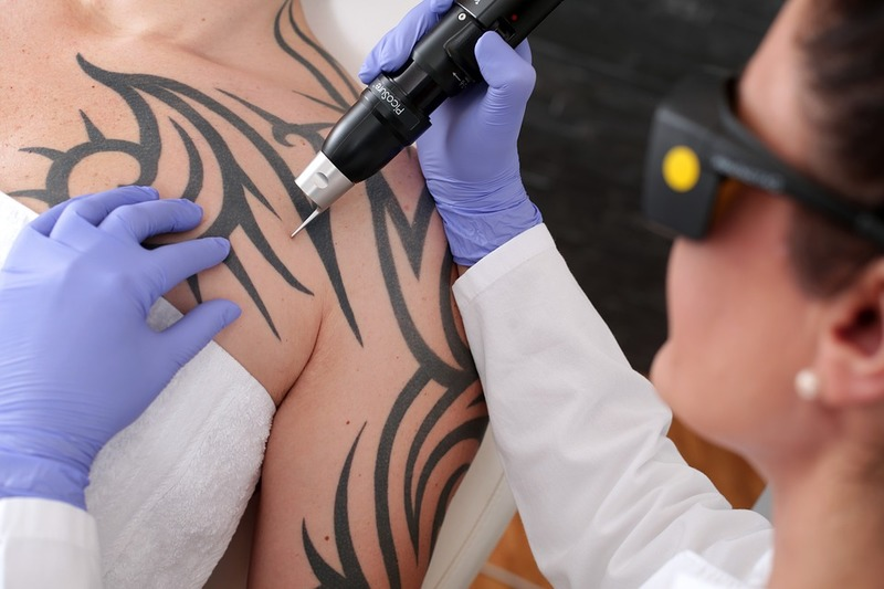Get a Tattoo Removed: Best Laser for Tattoo Removal